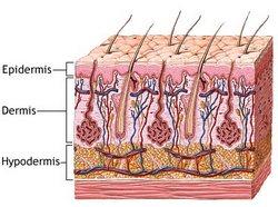 istegnuće mišića