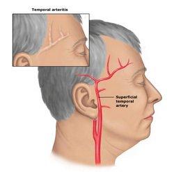 Temporalni Arteriitis
