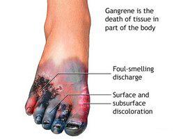 vlažna gangrena