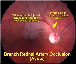 akutni glaukom