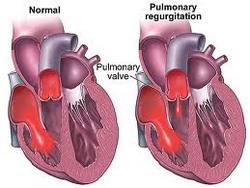 pulmonalna stenoza i insuficijencija