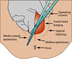 Epiziotomija