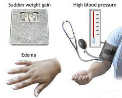 Preeklampsija i eklampsija