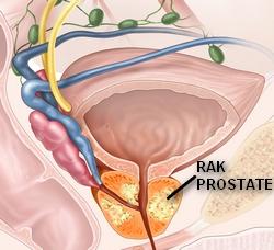 CDR 442273 prostate cancer staging