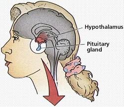 Abnormalnosti hipotalamusa i hipofize