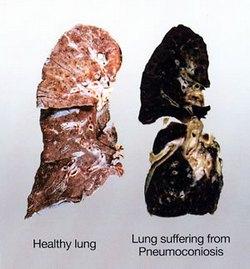 pneumokonioza