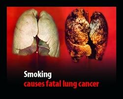 rak pluća