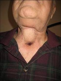 tumor grkljana