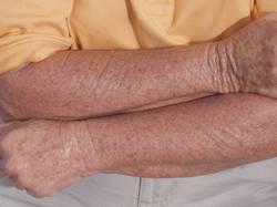 abnormalna pigmentacija kože