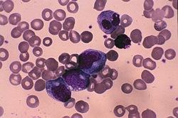Kronična limfatična leukemija