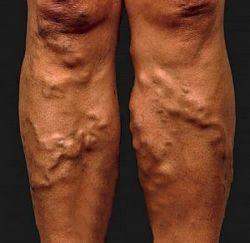 varikozne ili prosirene vene