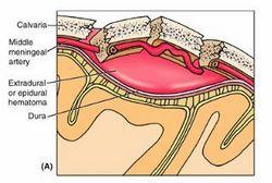 ekstraduralno krvarenje