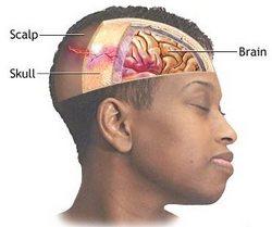 ozljede glave