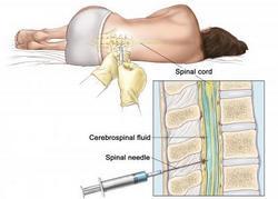 tumor leđne moždine