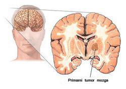 tumor mozga