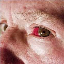 ulkusi i infekcije rožnice