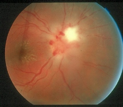 upala vidnog živca