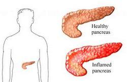 akutni pankreatitis