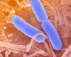 Bacilarna dizenterija