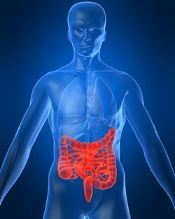 Crohnova bolest
