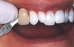 Promjena boje zuba