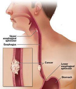 Rak jednjaka