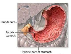 Stenoza pilorusa