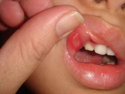 Usni čir (ulkus)