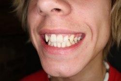 Zbijeni i krivo postavljeni zubi