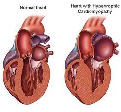 hipertrofična kardiomiopatija