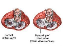 mitralna stenoza