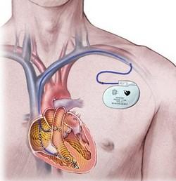 srčani blok