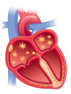 treperenje pretklijetki ili fibrilacija atrija