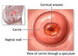 Erozija grlića maternice